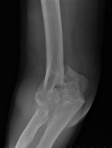 This image has an empty alt attribute; its file name is distal-humerus-1_moved.png