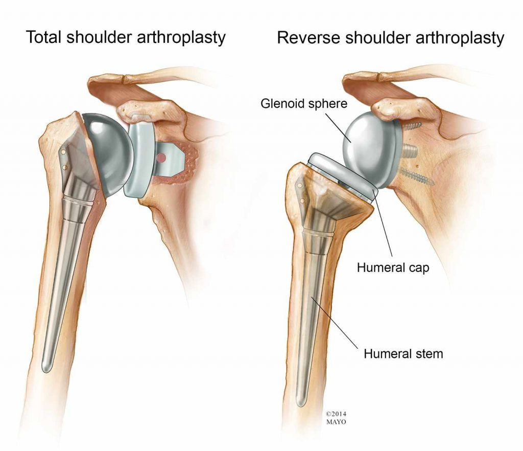 This image has an empty alt attribute; its file name is shoulder-arthroplasty-1024x882.jpg